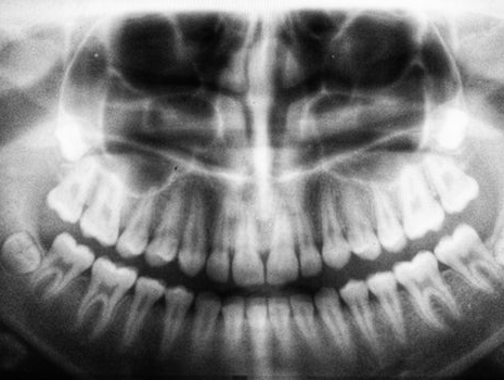 Wisdom Teeth FAQ: What You Need To Know