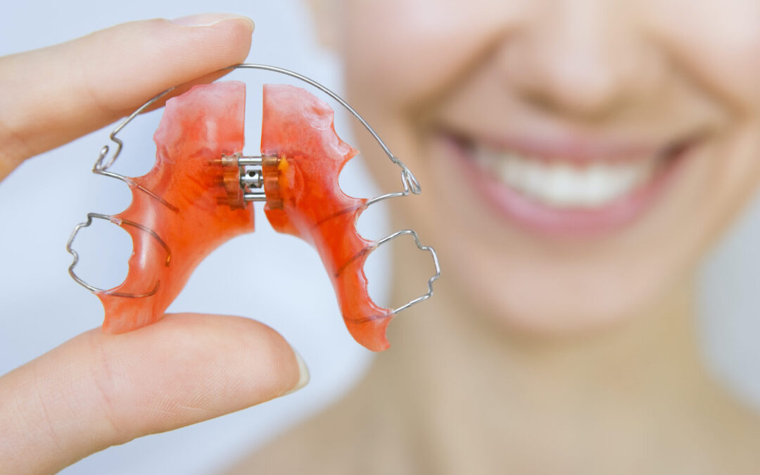 Retainers 101: What To Know About Life After Braces