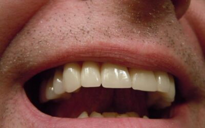 3 Signs That Your Dental Crown Needs To Be Replaced